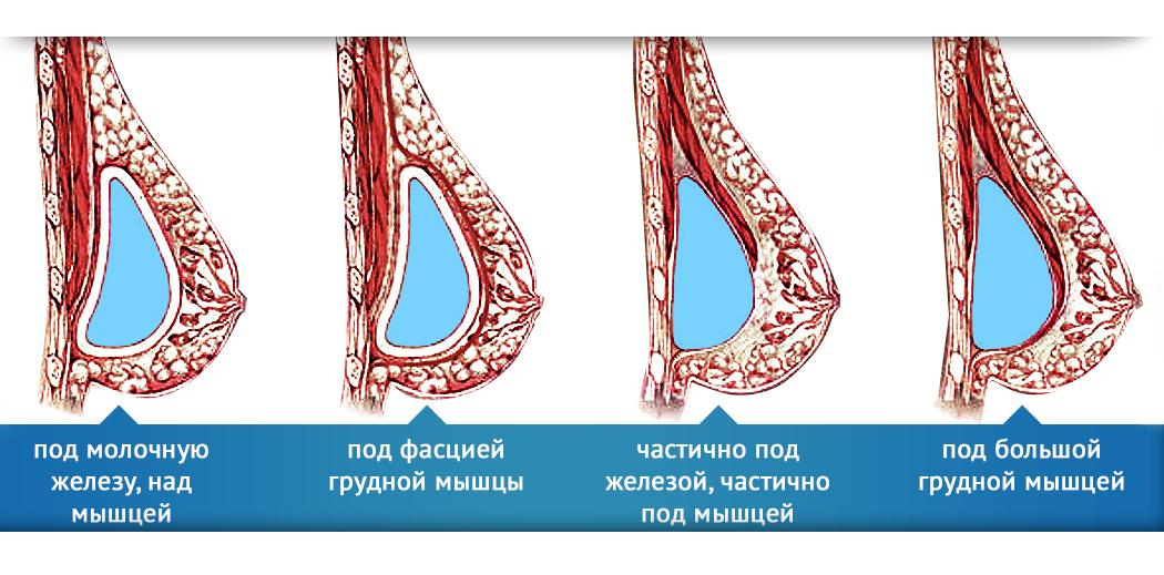 Расположение грудного имплантата