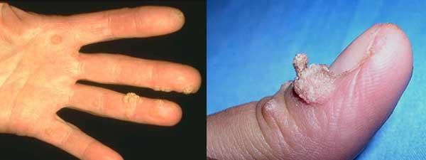 Рис Вульгарные бородавки рук
