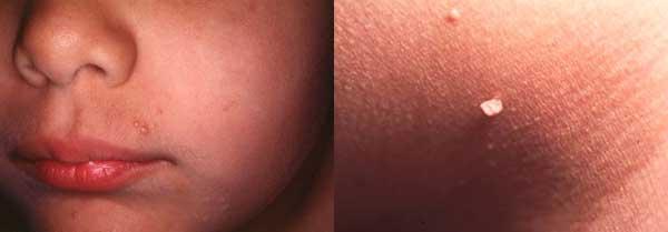Рис Контагиозный моллюск на губах и папилломы