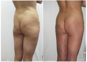 Фотографии результата липофилинга ягодиц. Жир для пересадки забран преимущественно в поясничной области.