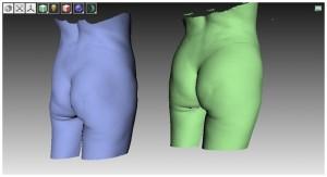 3D модели той же пациентки до и после липофилинга более наглядно, чем фото демонстрируют различия.