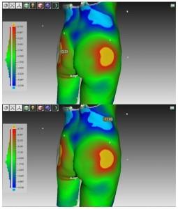 Наложение 3D моделей друг на друга позволяет выявить количественные различия до и после операции. Холодным синим цветом выделяются области, где объем уменьшился в результате липосакции, теплым красным цветом – области увеличения объема, где был пересажен жир. Изменения отображены в миллиметрах.