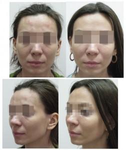 Сглаживание слезной и носо-губной борозды липофилингом