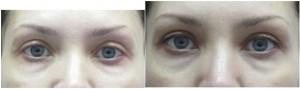 Устранение эффекта запавших глаз после блефаропластики.