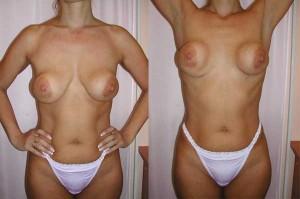 Образование капсулы вокруг имплантата и неестественная форма груди. Неестественная деформация груди усиливается при поднятии рук.
