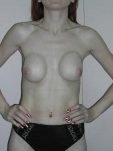 Недостаток подкожного жира и мягких тканей не может скрыть границ протезов. Имплантаты находятся на разной высоте и расстоянии от центра.