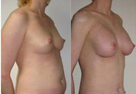 Липофилинг груди дает естественный по форме и физиологии результат, попутно исправляя форму живота.
