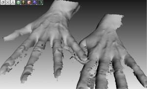 Трехмерное изображение кисти до и через 4 месяца после липофилинга. Отмечается умеренное сглаживание рисунка вен и межпястных промежутков.