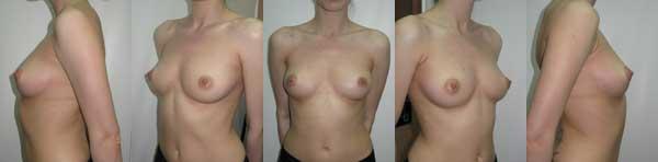 Рис.3 Стандартное фото документирование в пластической хирургии