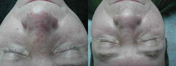 Удаление сосудов носа фотосистемой до и 7дней после