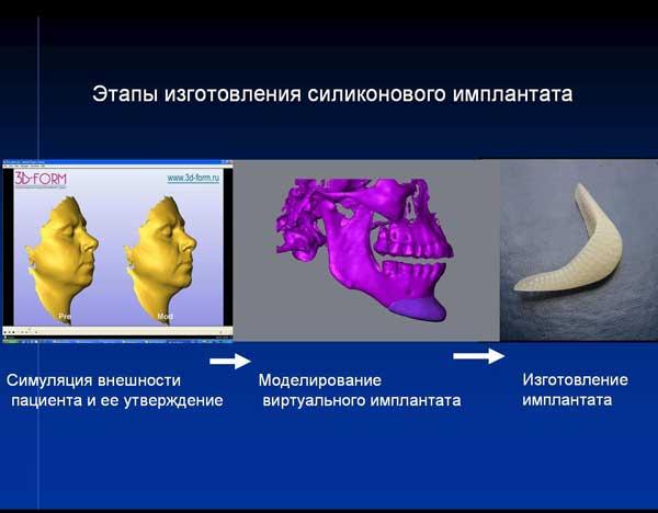.Изготовление индивидуального имплантата с использованием 3D принтера