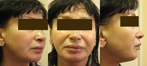 Рис Подтяжка нижней трети лица с одновременной 3D ментопластикой
