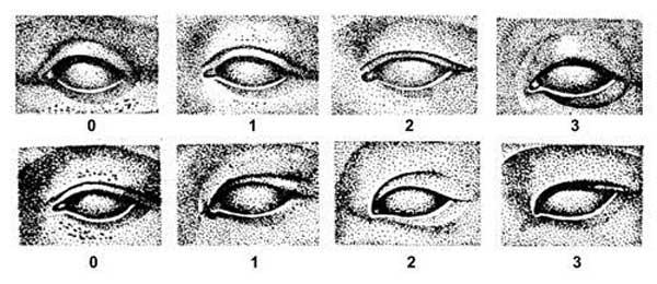 Одна из антропометрических классификаций степени выраженности орбито-пальпебральной борозды и внутреннего эпикантуса верхнего века.