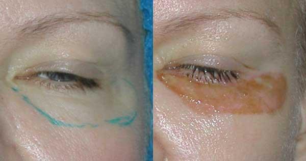 Разметка кожи до лазерной шлифовки. Корочки на ране через 3 дня после лазерной шлифовки
