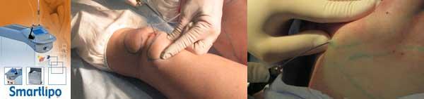 Липосакционный лазер и лазерная липосакция жировых подушечек на колене и избытков жира на шее и щеках.