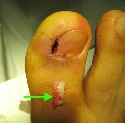 Тот же пациент. Лазером удалена ростковая зона и край ногтя (показан стрелкой)