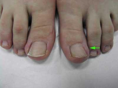Слева – вросший ноготь. Справа – 2 года назад  лазером удалена ростковая зона и край ногтя (показано стрелкой). Ноготь растет более узкий.