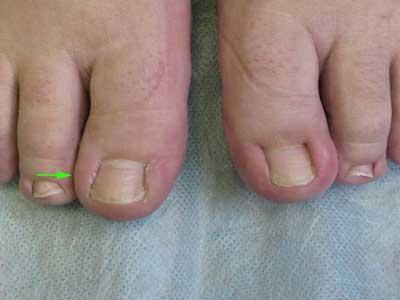 Слева – 1 года назад  лазером удалена ростковая зона и край ногтя (показано стрелкой). Ноготь растет более узкий. Справа – вросший ноготь.