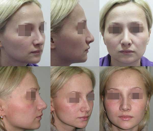 Повторная ринопластика. Устранение деформации кончика носа