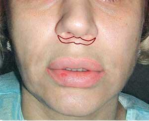 Форма разреза при Bull horn пластике верхней губы.