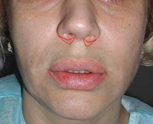 Форма разреза при подтяжке губы без пересечения кожи перегородки.