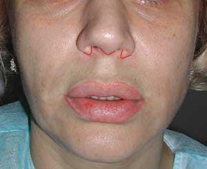 «Эндоназальная» подтяжка губы