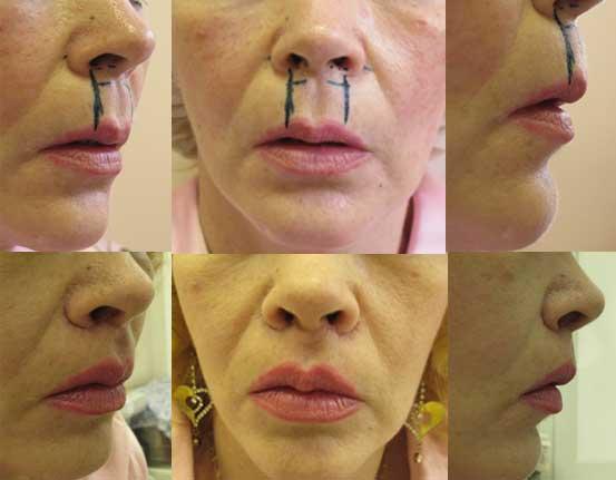 Омолаживающая подтяжка верхней губы без пересечения кожи перегородки носа. До операции и 2 месяца спустя