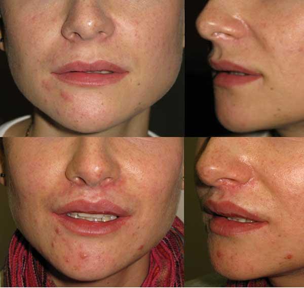 Bullhorn пластика верхней губы с целью увеличения красной каймы и обнажения резцов. До и 2 месяца спустя