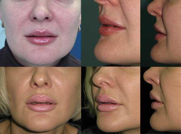 V-Y пластика верхней и нижней губ. Bullhorn пластика верхней губы