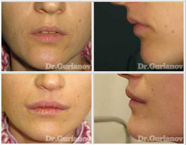 Cornerlift - поднятие уголков губ. До и через 2 месяца после операции.