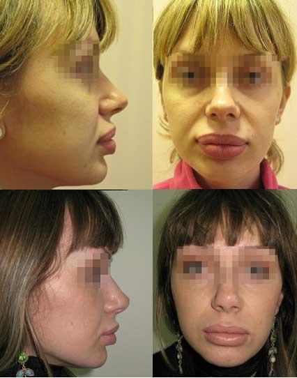 Хирургическое удаление биополимерного геля из губ с последующим лечением в течение 3 месяцев