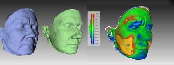 Рис 3D омоложение. Липофилинг височной области и щек, морщины марионетки.