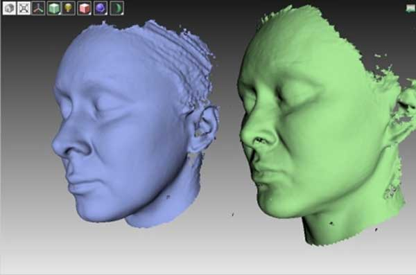 Рис 3D пластика лица. Сравнение трехмерных моделей до и после улучшения внешности