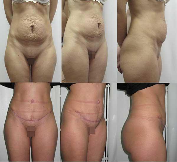 Рис До и 2 месяца после абдоменопластики