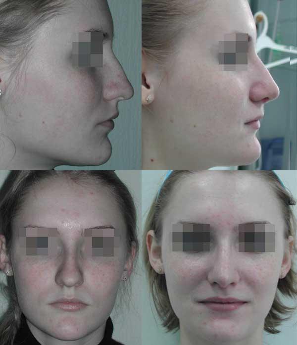 Увеличение носогубного угла и сужение кончика носа. 2 месяца после операции.