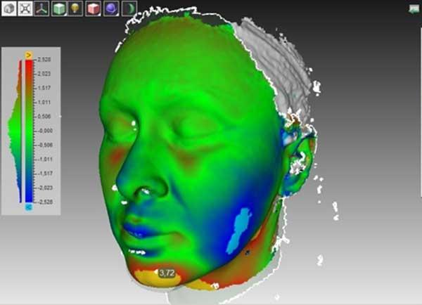 Рис Результат 3D ментопластики - увеличение проекции подбородка на 3.72 мм
