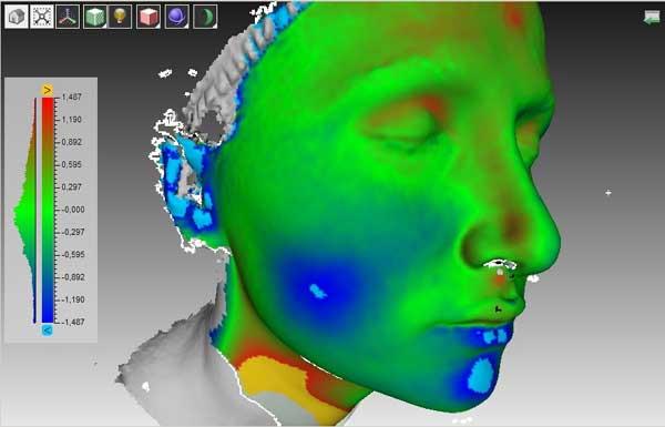 Примеры изменения щек после удаления комков Биша. При совмещении 3D моделей  до и после операции холодным цветом окрашены области уменьшения объема щеки. Цифры показывают глубину западения щек