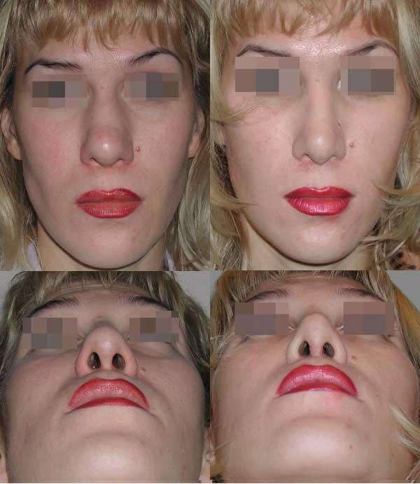 Сужение костной пирамиды и кончика носа. 1 месяц после операции