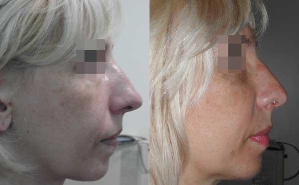 Уменьшение проекции кончика носа. 2 месяца после операции