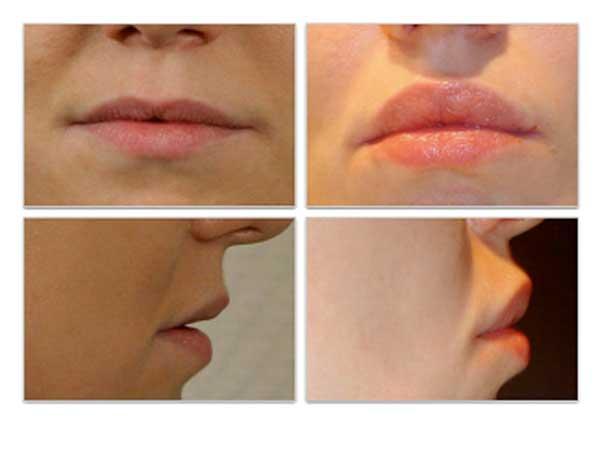 Увеличение верхней губы методом V-Y пластики губ