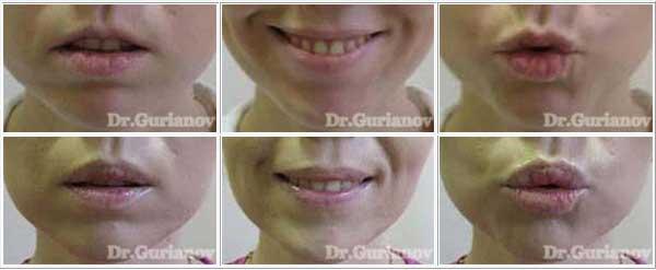 V-Y пластика губ - хирургическое увеличение верхней губы. До и через 2 месяца.