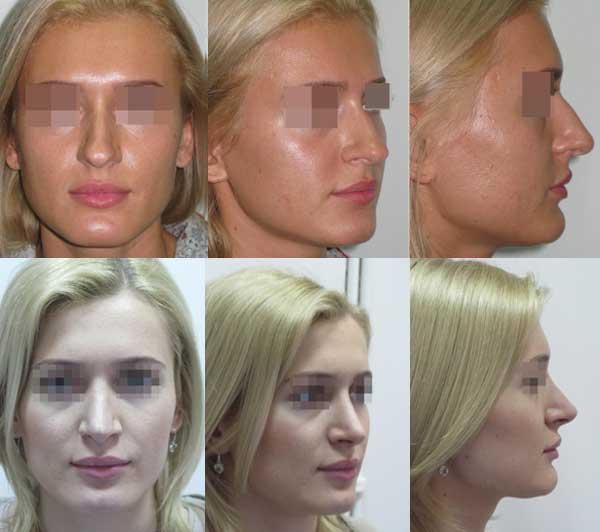 Пластическая операция на нос стоимость