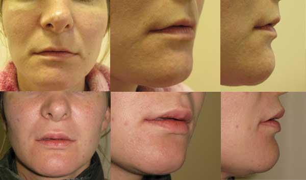 V-Y пластика верхней и нижней губ. До и 2,5 месяца после операции