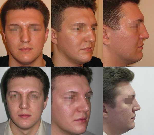 Риносептопластика. Устранение посттравматической деформации перегородки, спинки и кончика носа