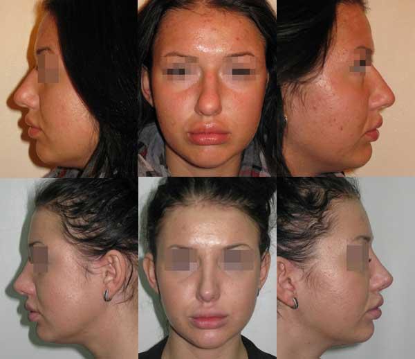 Сужение кончика и спинки носа, удаление горбинки