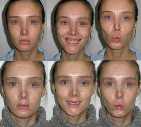 Рис Устранение десневой улыбки с одновременным хирургическим увеличением верхней губы.
