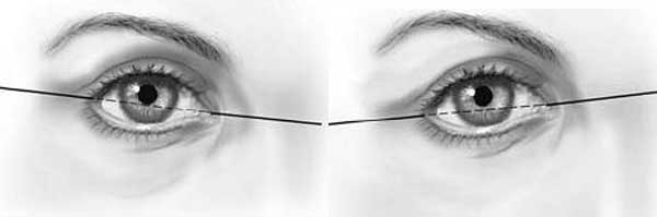 Угол наклона глазной щели