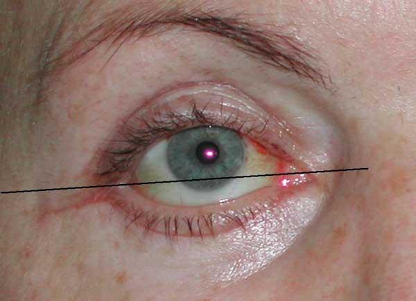 Отрицательный угол наклона глазной щели. Обнажение склеральной каймы после блефаропластики