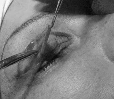 Удаляется лишняя кожа, избыток мышцы и жировые грыжи.