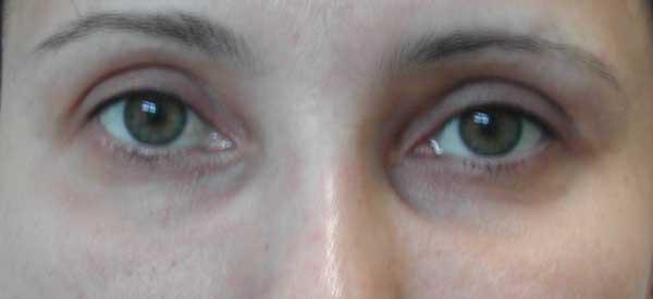 До операции. Умеренный избыток кожи нижних век. Выраженная слезная борозда.